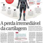 Correio Braziliense - Dr. Julian Machado - HSL - 07-07-2016