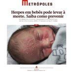 Metrópoles - Dr. Alexandre Nikolay HSLS - 14-01-2019