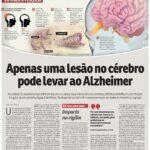 Correio Braziliense - Dr. Ivan Coelho HSLS - 18-09-2019